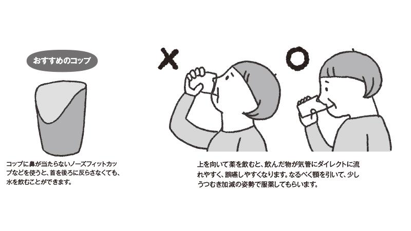 誤嚥予防の場面別注意点!~服薬~