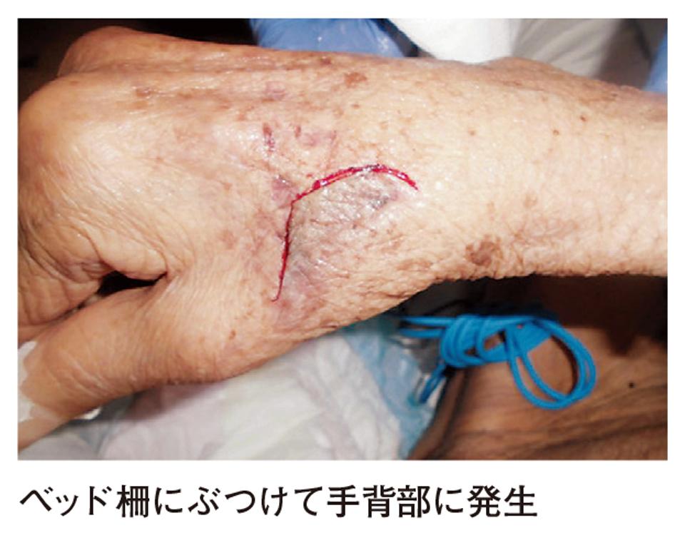 スキン-テアを知っていますか? 高齢者の皮膚トラブル